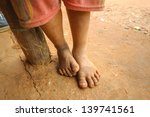The Feet Of A Child Living In...