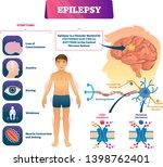 epilepsy vector illustration.... | Shutterstock .eps vector #1398762401