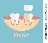 teeth procedure of veneer... | Shutterstock .eps vector #1403933411