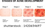 stages of development of acne....   Shutterstock .eps vector #1420654697