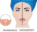 acne pustules on a woman face... | Shutterstock .eps vector #1431469937