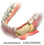 Bone Graft On Loss Bone In...