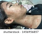 Small photo of Typical post-measles staining or transient purpura or chikungunya rash over whole body especially face and neck of Southeast Asian, 12-year-old girl. It is maculopapular rash.