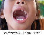 stacked front tooth  a problem... | Shutterstock . vector #1458334754