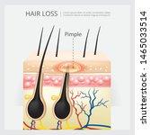 hair loss structure vector...   Shutterstock .eps vector #1465033514