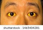 yellowish discoloration of skin ...