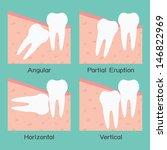 wisdom tooth  vector | Shutterstock .eps vector #146822969