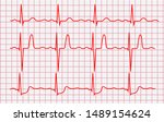 Cardiogram Or Pulse Line On A...