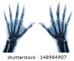 X Rays Of Hands Of An Adult Man ...