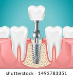 dental surgery. tooth implant... | Shutterstock .eps vector #1493783351