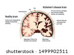 Human Brain.  Healthy And Brain ...