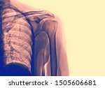 Human Bones Of Skull  X Rays...