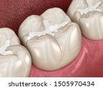 Molar Fissure Dental Fillings ...