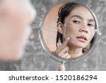 Asian Woman Having Skin Problem ...