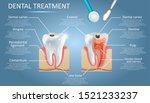 dental treatment vector diagram ... | Shutterstock .eps vector #1521233237