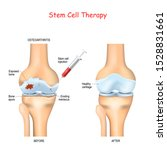 Stem Cell Therapy For Pain In...