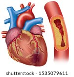 Illustration of the heart with coronary artery disease, the main blood vessel that supplies blood, oxygen and nutrients, has accumulation of cholesterol (plaque) and narrows the artery, which decrease
