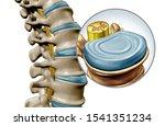 Lumbar Spine Disk Anatomy...