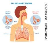 pulmonary edema   respiratory... | Shutterstock .eps vector #1555587971