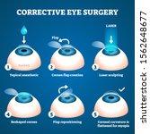corrective eye surgery vector...   Shutterstock .eps vector #1562648677