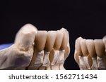 dental crowns. close up ceramic ...   Shutterstock . vector #1562711434