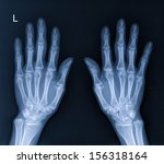 x ray of hand | Shutterstock . vector #156318164