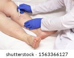 Small photo of Doctor vascular surgeon holds a scalpel near the legs of a woman with a disease of varicose veins of the lower extremities. The concept of treating varicose veins with surgery
