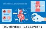 transcatheter aortic valve...   Shutterstock .eps vector #1583298541