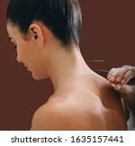 Small photo of Acupuncture needles in a woman's spine close-up on a brown background. Reflexologist very accurately doing acupuncture. Osteochondrosis treatment