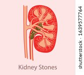 kidney stones medical concept... | Shutterstock .eps vector #1639577764