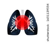 isolated icon of sick lungs... | Shutterstock .eps vector #1651139554