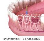 Endodontic Root Canal Treatmen...