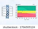 Image Of Dxa Bone Density Scan...
