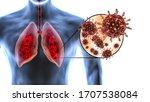 Coronavirus Attacks Human Lung...