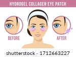 before and after hydrogel eye... | Shutterstock .eps vector #1712663227