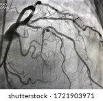 Coronary Angiogram Shown Mid...