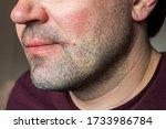 Part Of A Caucasian Man\'s Face...