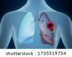 lungs affected by a covid 19... | Shutterstock .eps vector #1735519754