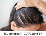 Closeup Thin Hair On Scalp Of...