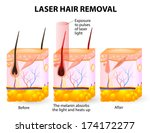 laser emits an invisible light... | Shutterstock .eps vector #174172277