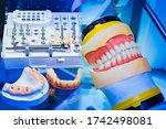 Prosthetic Dentistry....