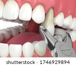 3d Render Of Lower Jaw With...
