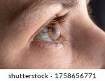 Small photo of Macro eye photo. Keratoconus - eye disease, thinning of the cornea in the form of a cone. The cornea plastic.
