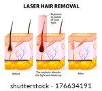 laser hair removal. | Shutterstock . vector #176634191