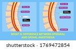 epidural spinal block... | Shutterstock .eps vector #1769472854