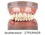 teeth   paradontosis | Shutterstock . vector #179194439