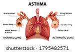 human anatomy asthma diagram... | Shutterstock .eps vector #1795482571