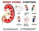 kidney stones symptoms cartoon...   Shutterstock .eps vector #1795482607