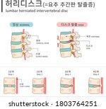 Lumbar Herniated Intervertebral ...