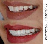 Close Up Women Lip And Teeth...